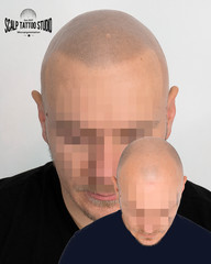 Scalp micropigmentation after 3 session