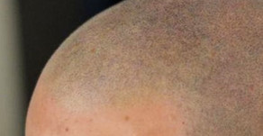 Basic knowledge about micropigmentation