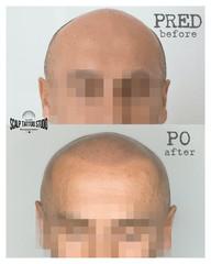 scalpmicropigmentation Scalp Tattoo Studio