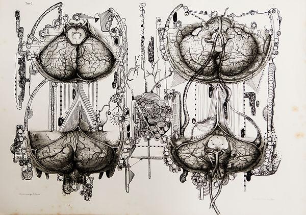 Frederic Babon cerveau