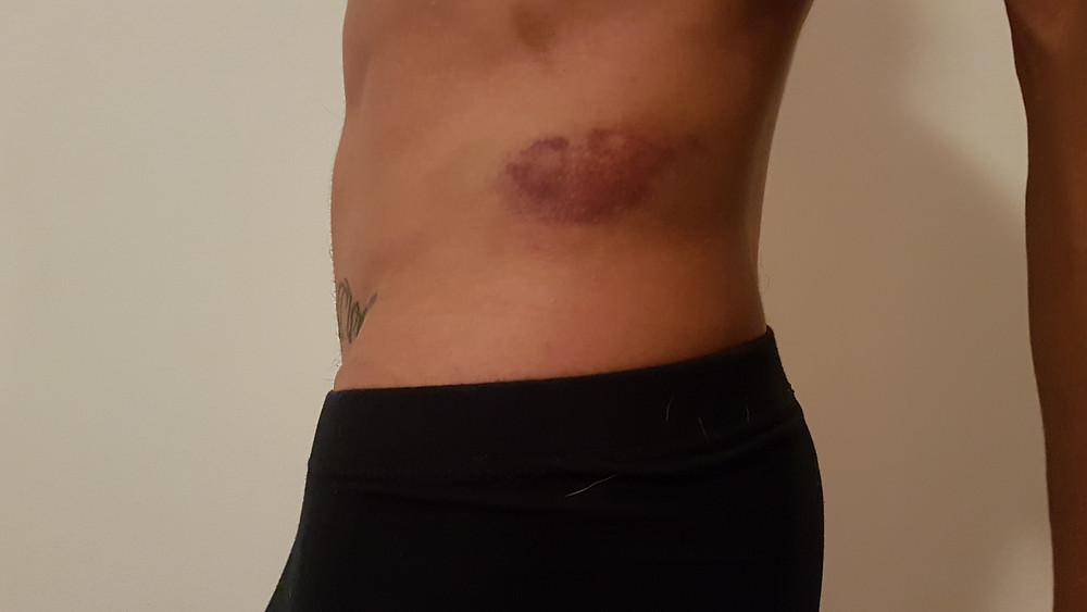 crash bruise