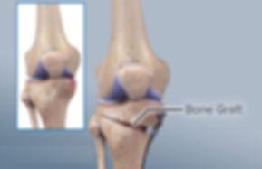 Tibial osteotomy