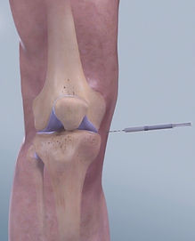 Knee Injecton