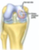 Osteochondral Autograft Transfers - OATS