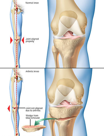 Knee Osteotomy