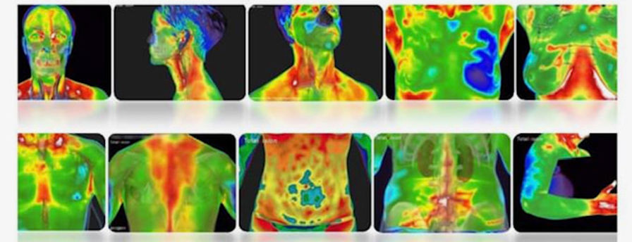 multi image thermography scan.jpg