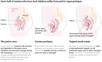Japanese treatment on Interstitium and Peritonea for involuntary bladder leakage