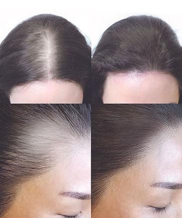 hairline.jpg