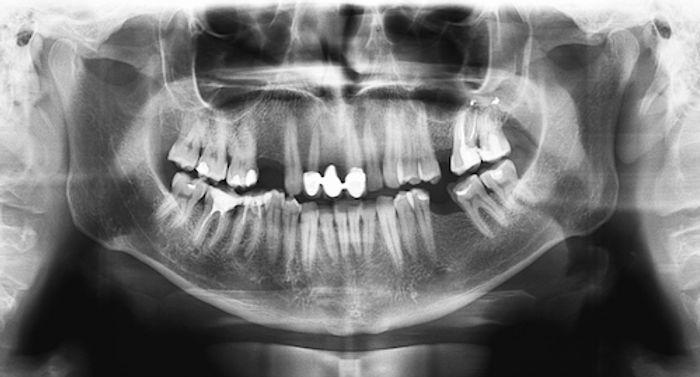 tandarts-praktijk-putten-rontgen.jpg