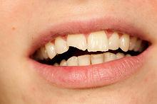 tandarts-praktijk-putten-tandletsel.jpg