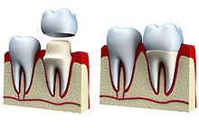 kronen-tandarts-putten.jpg