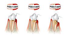 tandarts-praktijk-putten-tandvleesproble