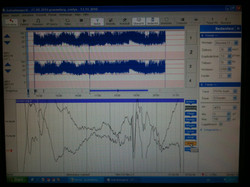 eines der ersten EEGs