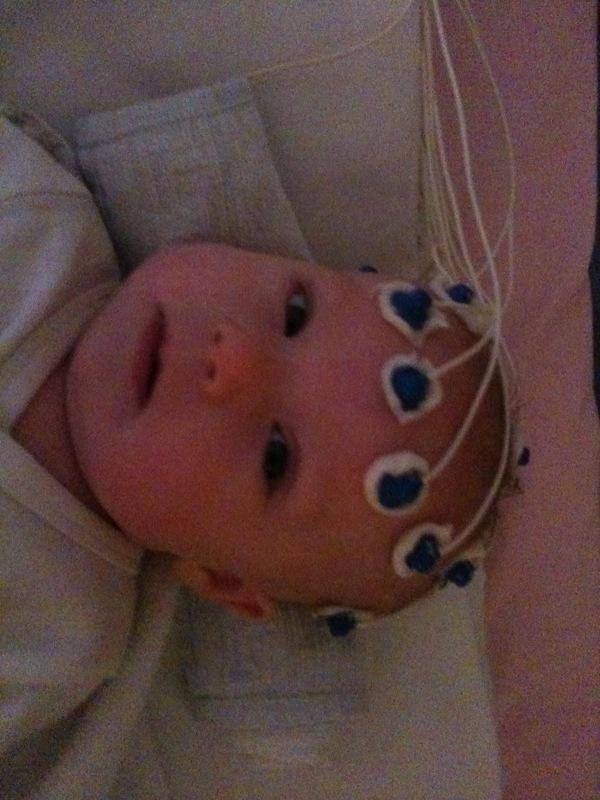 weiteres unzähliges EEG