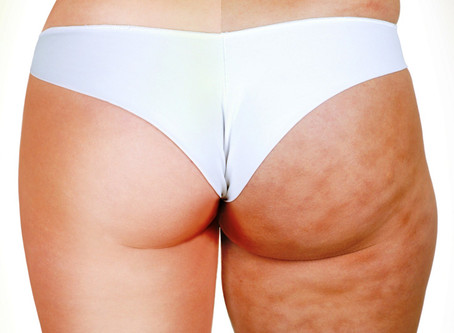 How to lose cellulite?