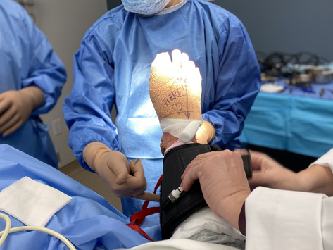 How to prepare for bunion foot surgery and what to expect