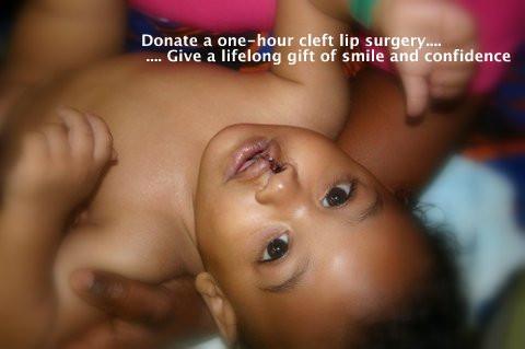 after photo cleft lip repair liberia.JPG