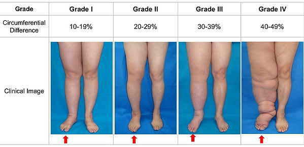examples of swelling in legs
