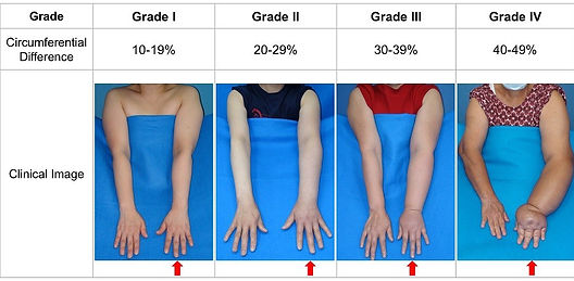 examples of swelling in arms