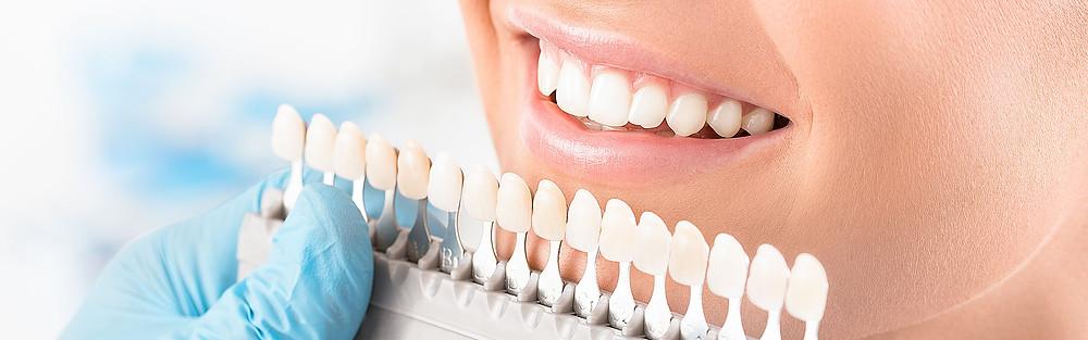 Dental-Veneers-material
