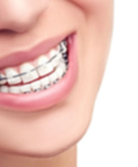 laird orthoontics metal braces