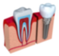 Dental-Implant-vs-Natural-Tooth.jpg