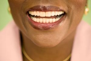Sunny Dental Bonding: A Small Fix for Teeth