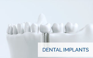 123 Dental Implants