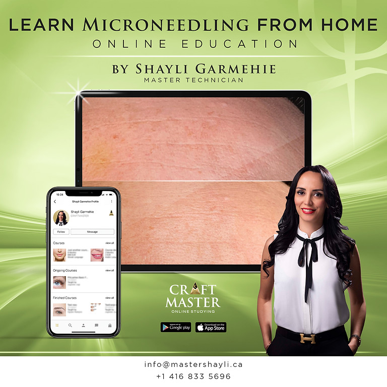 Microneedling Course Training Online
