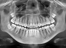 digital x-ray.jpg