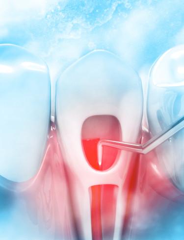 Laser-Dentistry-in-Endodontic-Treatments
