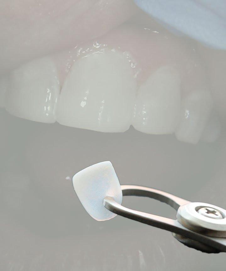 Dental-Veneer-Benefits