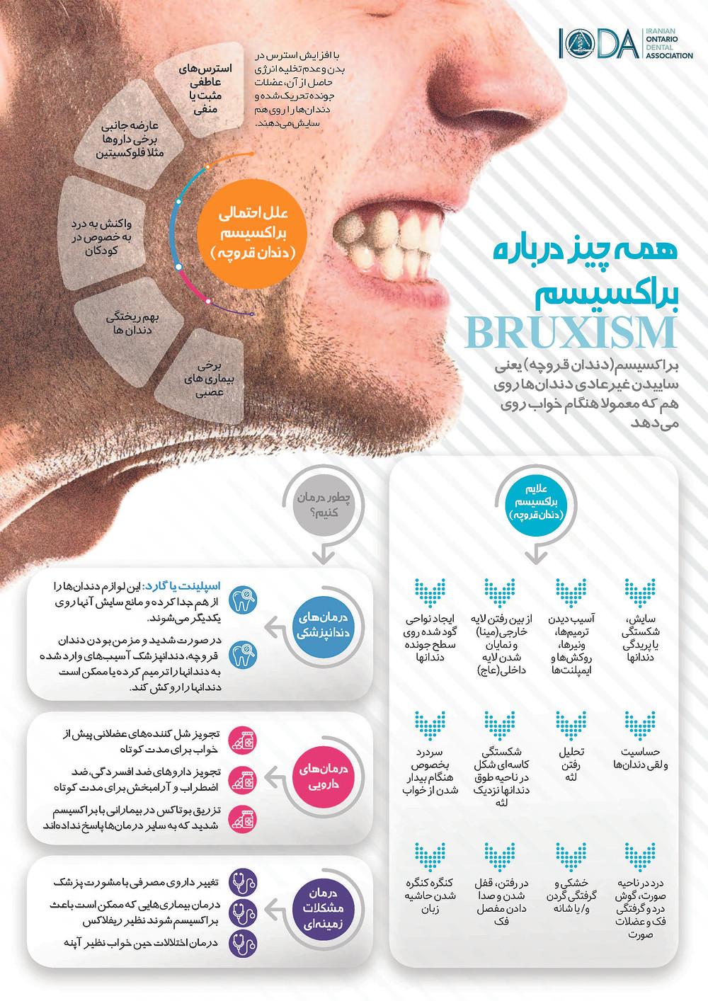 علایم براکسیسم دندان قروچه