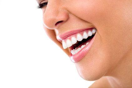 Dental Veneers: Advantages