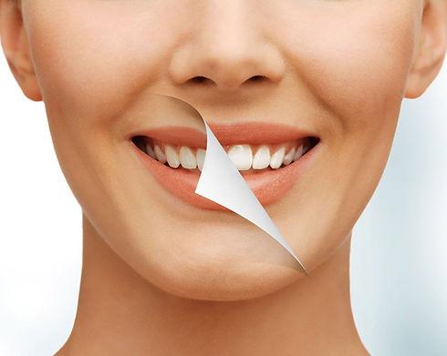 Smile-whitened