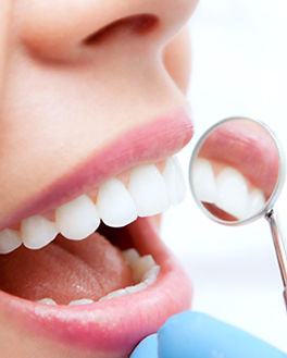general-dentistry-hygiene-services.jpg