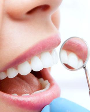 general dentistry hygiene services