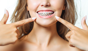 Orthodontics at Any Age