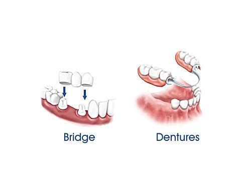 Dental-Bridge-Denture