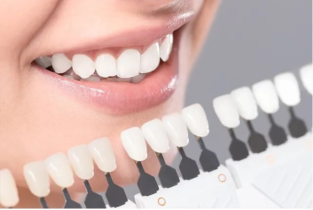 What-Types-of-Problems-Do-Dental-Veneer-Fix?