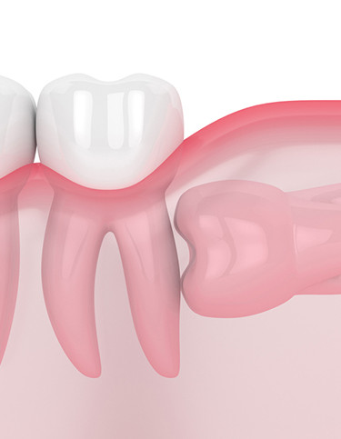 Are Wisdom Teeth extracted even if there is no pain?