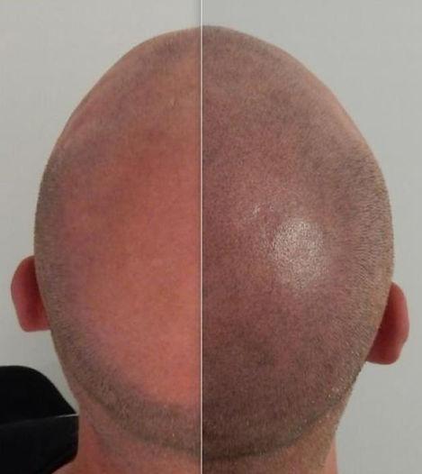 tile-trichopigmentation.jpg