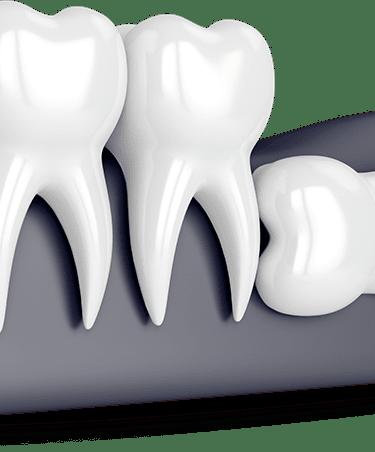 Do all Wisdom Teeth need extraction?