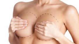 Fim do ano tem aumento de 50% na procura por cirurgia plástica