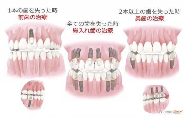 implant_img005.jpg