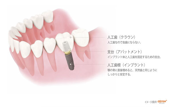 implant_img006.jpg