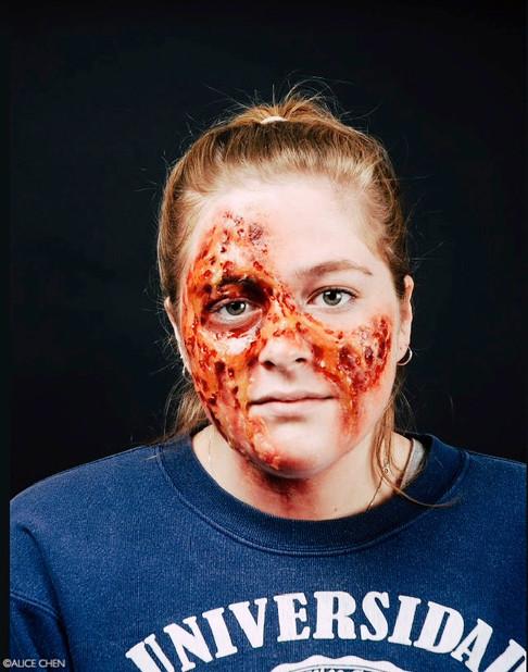 Injury--Acid Attack