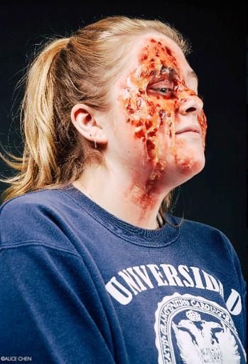 Injure--Acid Attack