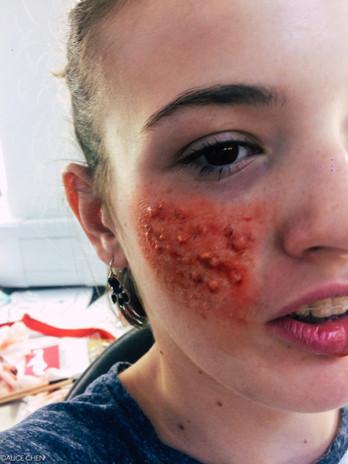 Pimples Makeup