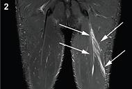 MRI hamstring.png